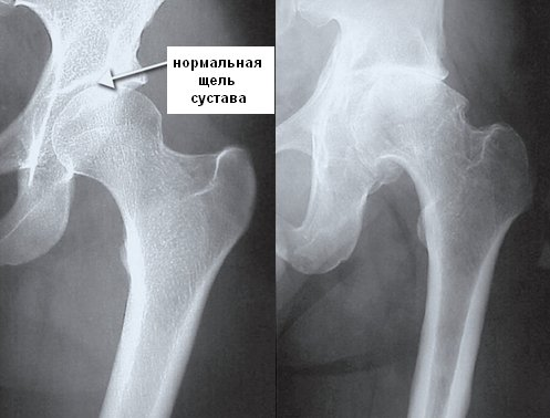 Артроз тазобедренного сустава (коксартроз) - основные симптомы ...