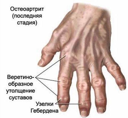 Артроз суставов кистей рук лечение как лечить суставную болезень телят