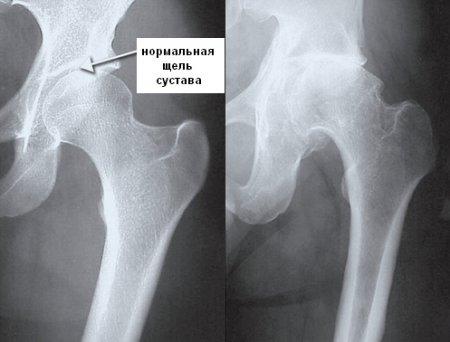 Шины дисплазия тазобедренных суставов
