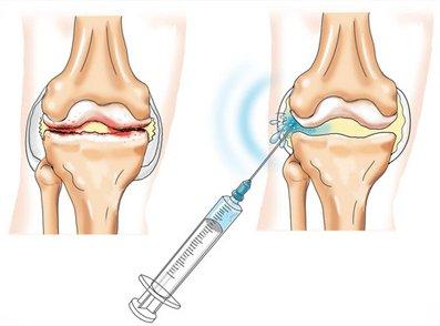 Введение в сустав гиалуроновой кислоты отзывы операция на связки коленного сустава